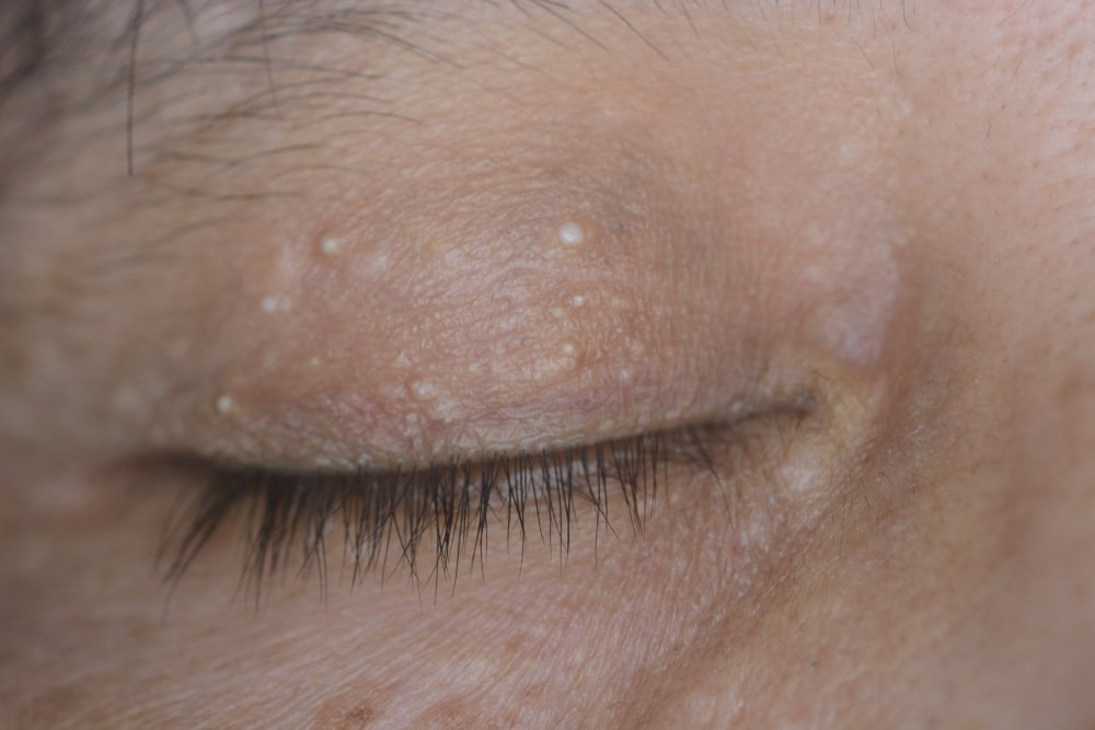 Why Is There a Bump on My Eyelid? - Eye Center of Texas